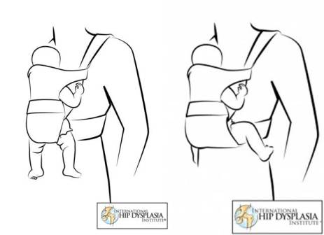 Hip Health in baby carriers